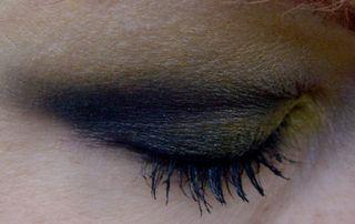 Bumble eye