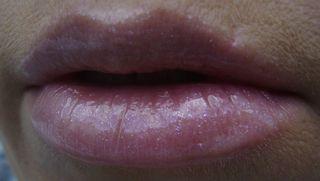 Bumble lips