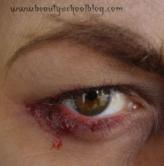 Vampy eye 1